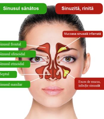 sinuzita