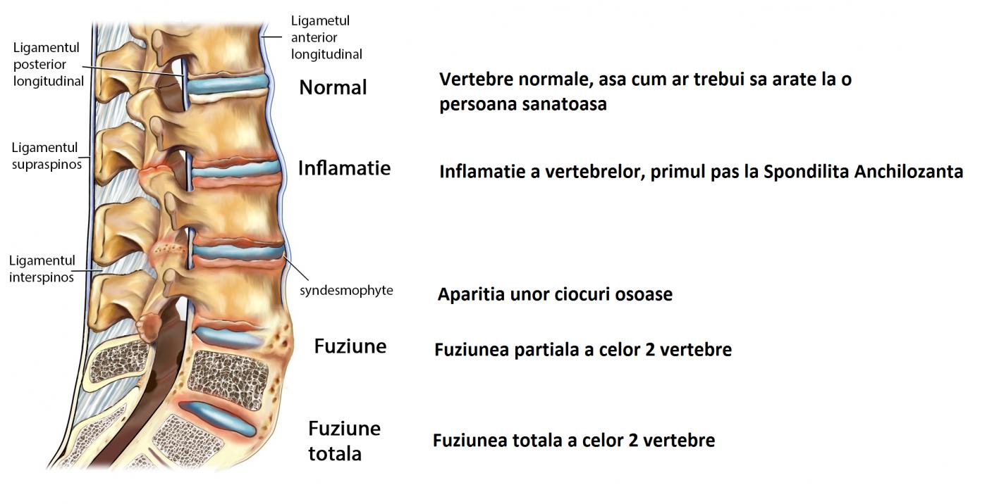 hemlock în tratamentul artrozei