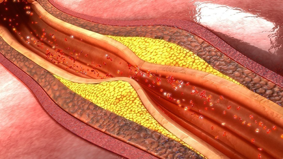 arteroscleroza