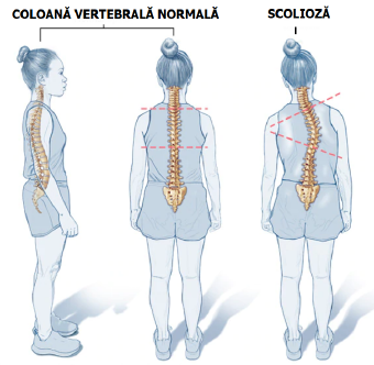 Scolioza la adolescenti: de ce corsetul NU functioneaza?