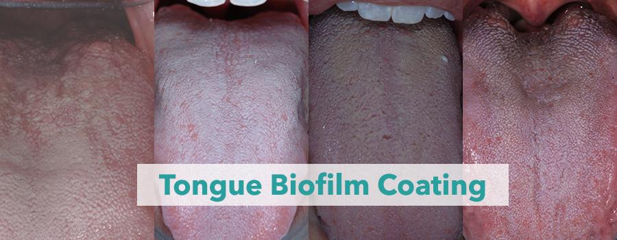 biofilm - simptone la nivelul limbii/ bucal